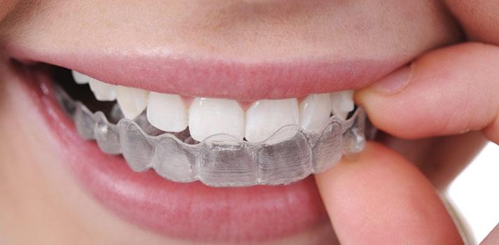 aparelho-dentário